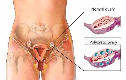 PCOS ovary